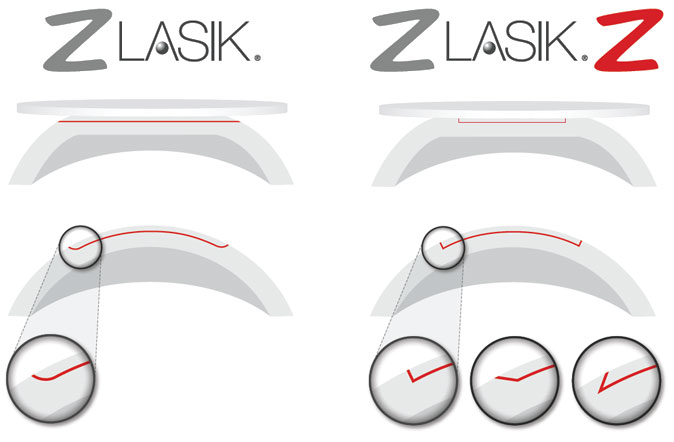 Comparison of the cut using Z-Lasik (on the right) and Z-Lasik-Z method (on the left)