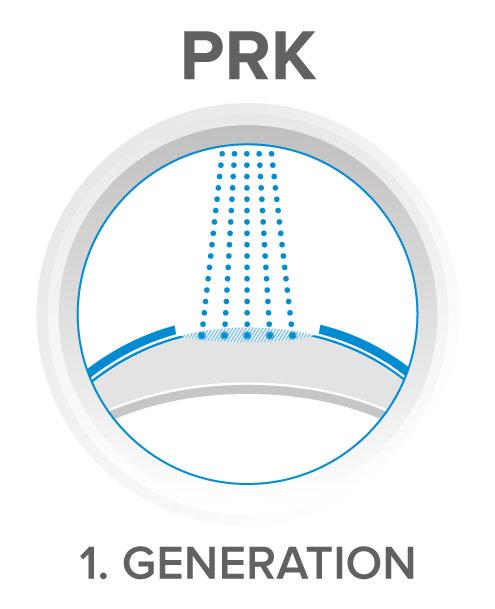 PRK - excimer laser