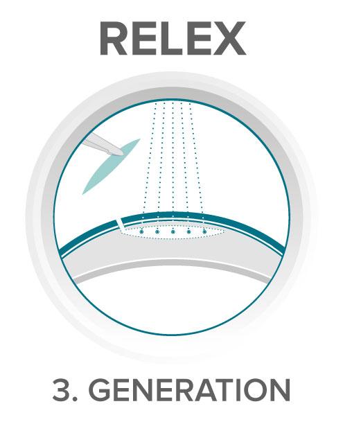 Relex Smile 3D femtosecond laser