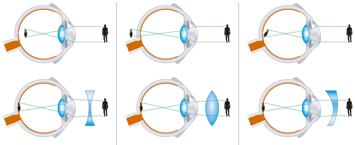The difference between nearsightedness (myopia), farsightedness (hyperopia) and astigmatism