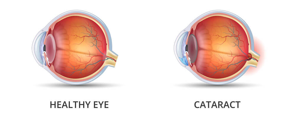 Healthy left eye and cataract on the right eye. The gradual clouding of the lens can significantly complicate your daily life and gradually steal your sight.