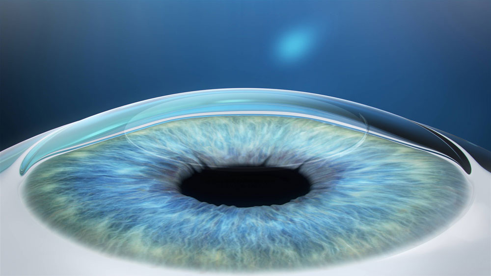 What can you expect from a Relex Smile eye surgery?