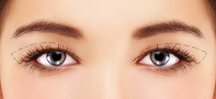 Plastic surgery of the upper eyelids