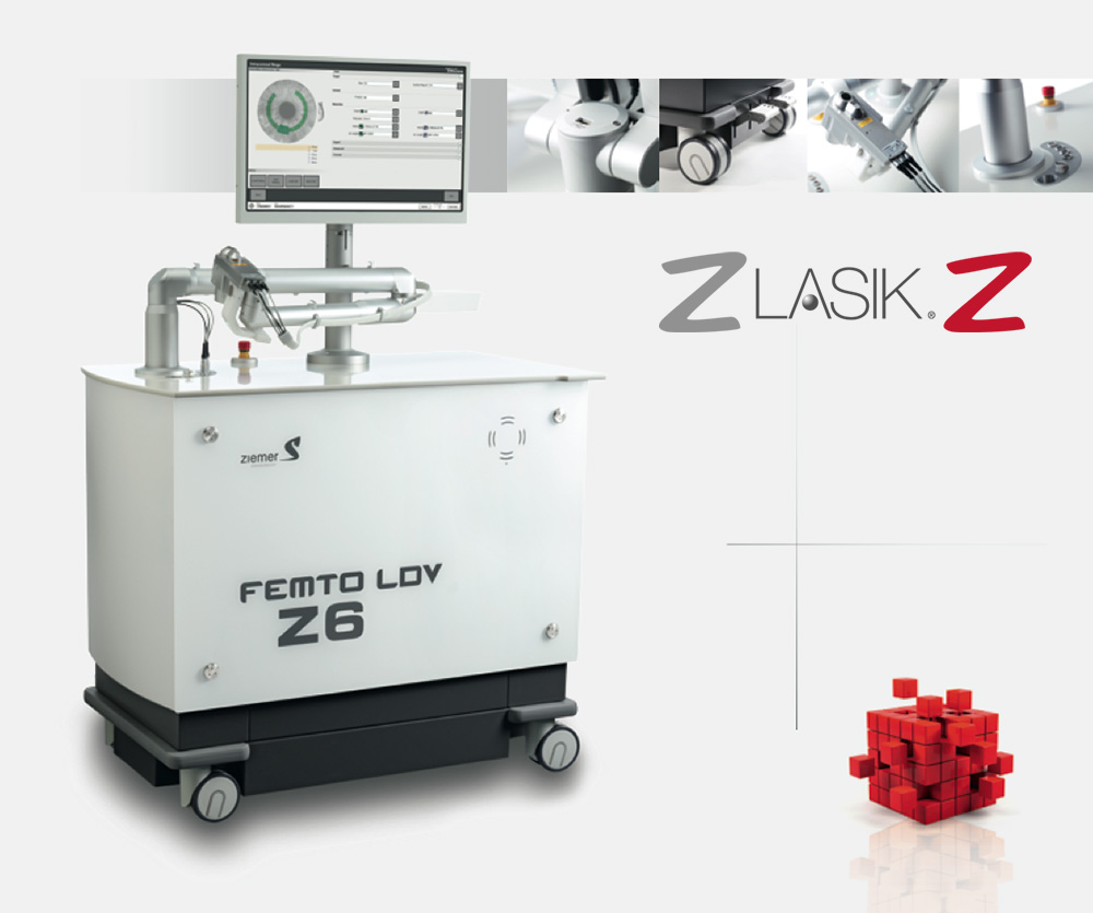 femtosecond laser and Z Lasik Z method